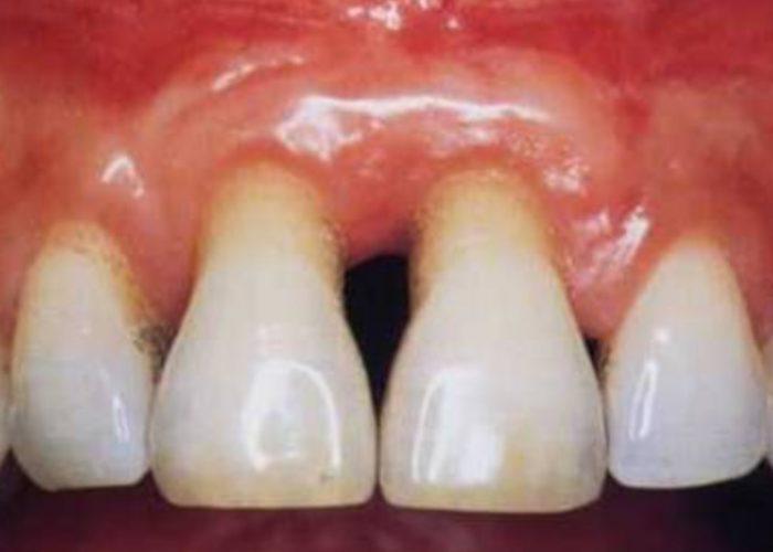 Sačuvajte zube od parodontoze